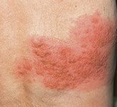 Photo of a Shingles rash.